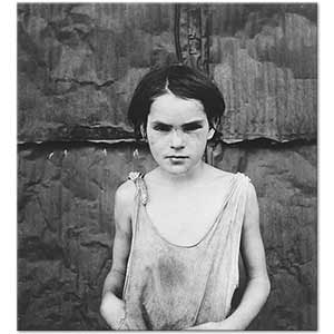 Dorothea Lange Damaged Child Art Print